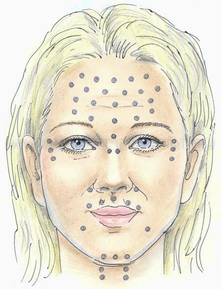 Схема уколов ботокса на лице